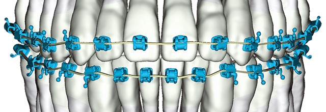 digital braces